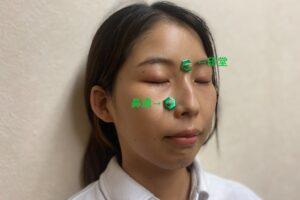 印堂・鼻通のツボ